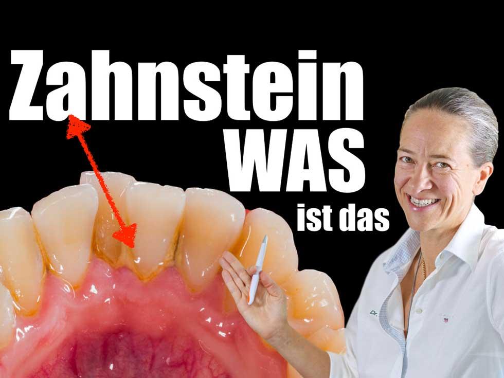 Zahnstein - Was ist das?